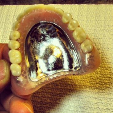 Full Denture w/ Nobilium Frame