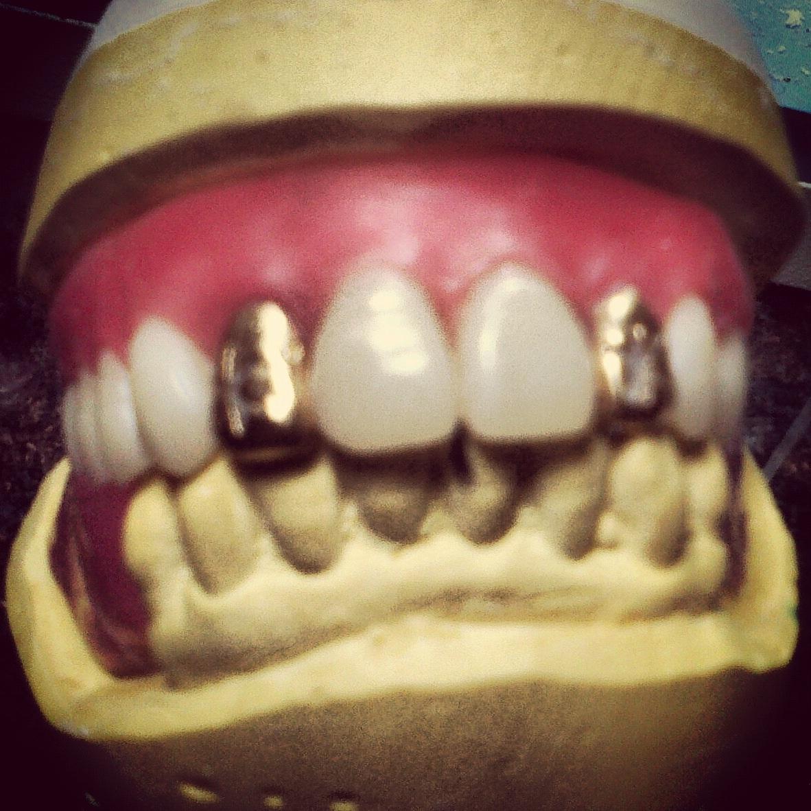 Gold Dentures