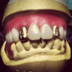 Gold Denture Teeth (in wax)