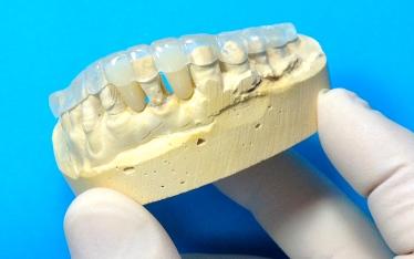 Ariana Dental Lab Inc Nyc S Best Dentures