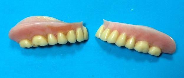 Before: Broken Denture
