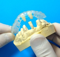 Essix Retainer with replacement teeth (1)