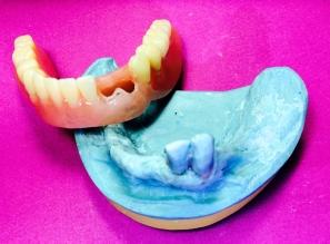 Cusil Denture