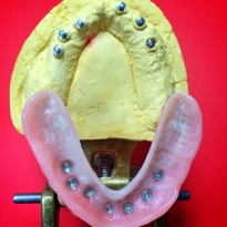 Finished Full Upper overdenture implant reinforced with Nobilium mesh to avoid breaking [Step 2 in wax] (Micro Ball Attachments)