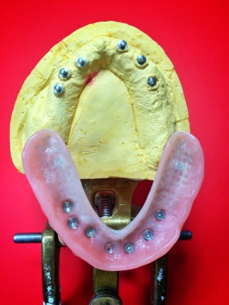 Full Upper overdenture implant reinforced with Nobilium mesh to avoid breaking [Step 2 in wax] (Micro Ball Attachments)