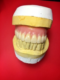 Finished Full Upper overdenture implant reinforced with Nobilium mesh to avoid breaking [Step 3 Finished Case] (Micro Ball Attachments)