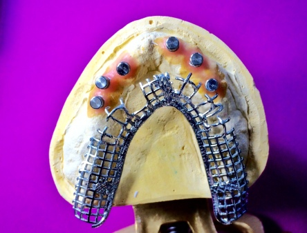 Full Upper overdenture implant reinforced with Nobilium mesh to avoid breaking [Step 1] (Micro Ball Attachments)