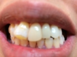 After: New Denture