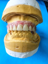 Old Denture