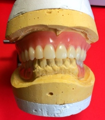 New Duplicate Denture