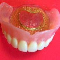 New Duplicate Denture w/ Mesh Reinforcement