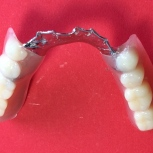 Finished overdenture partial