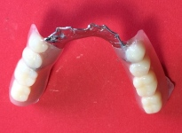 Lower Implant