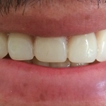 After [Duplicate New Overdenture]