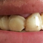 Before [Old Overdenture]