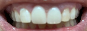 After: Two Teeth Flipper